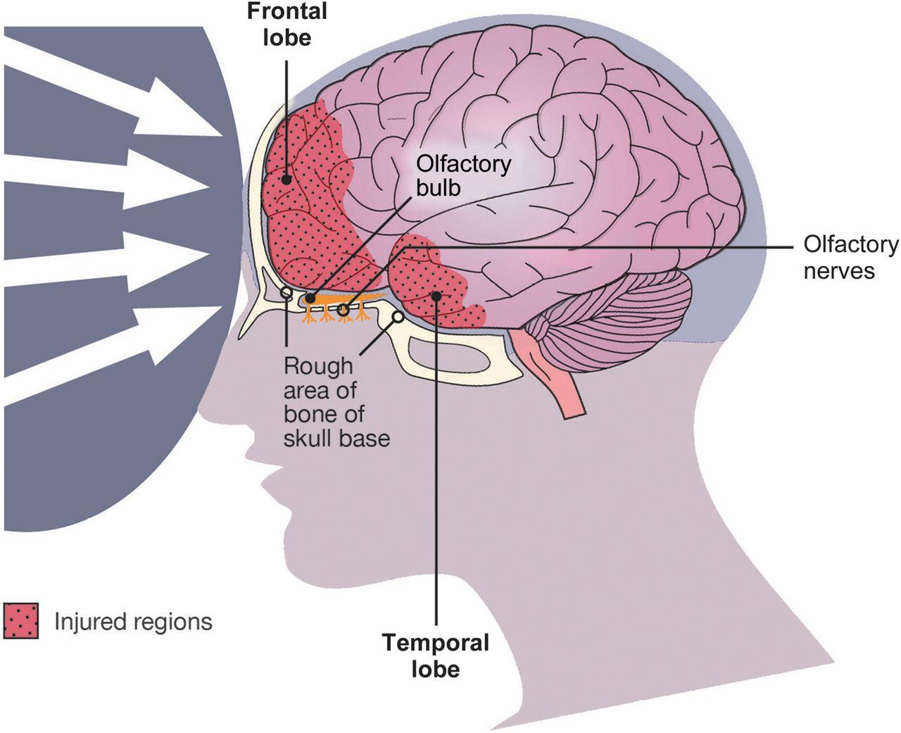 Smell And Taste In Clinical Neurology Neurology Clinical Practice