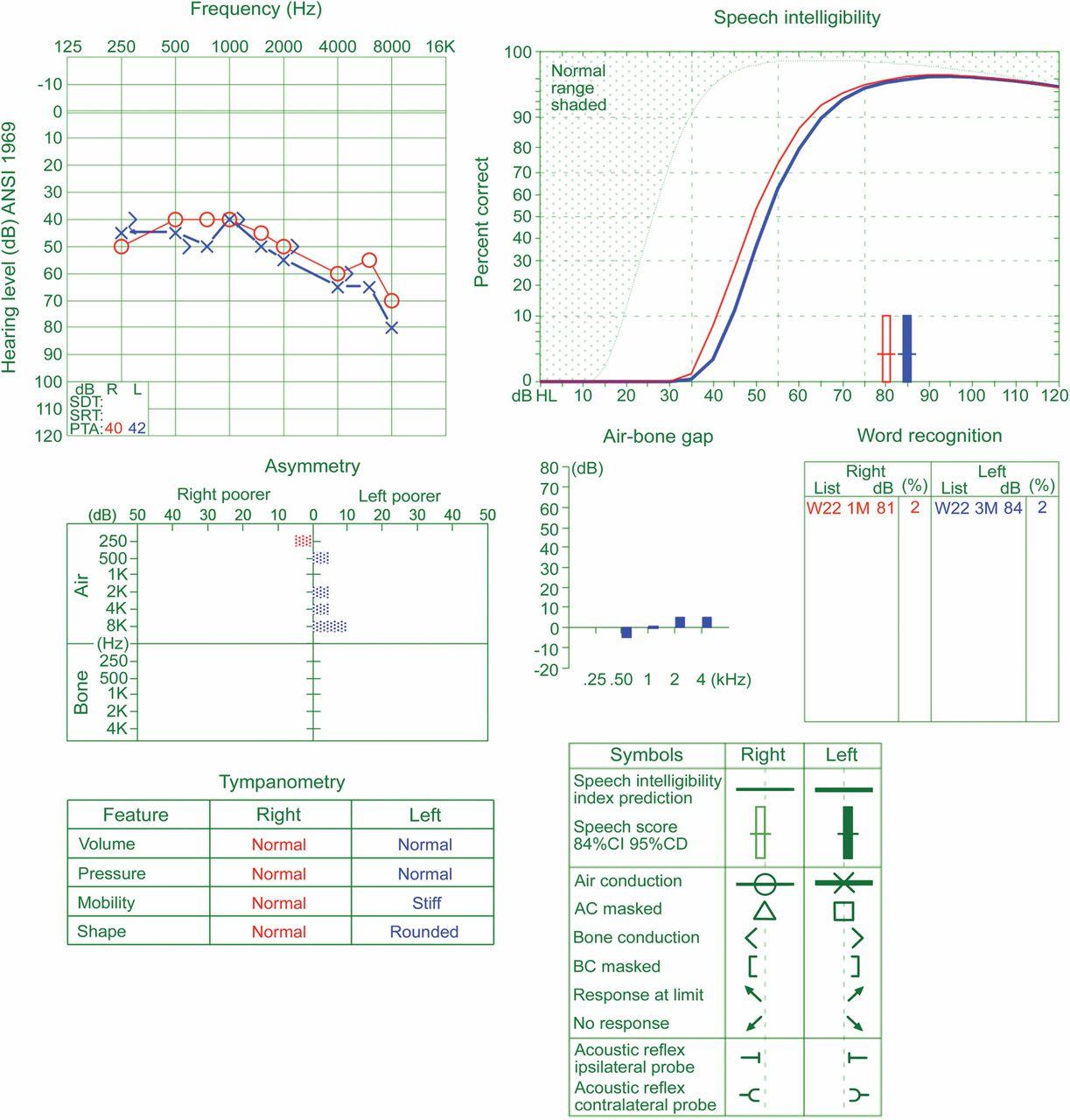 Hearing loss in Wernicke encephalopathy   Neurology Clinical Practice
