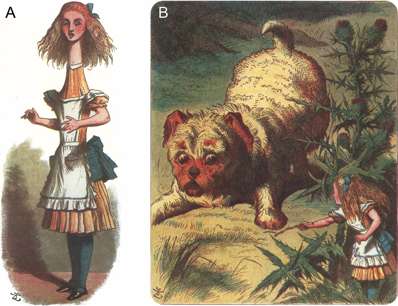 Alice Wunderland Syndrom