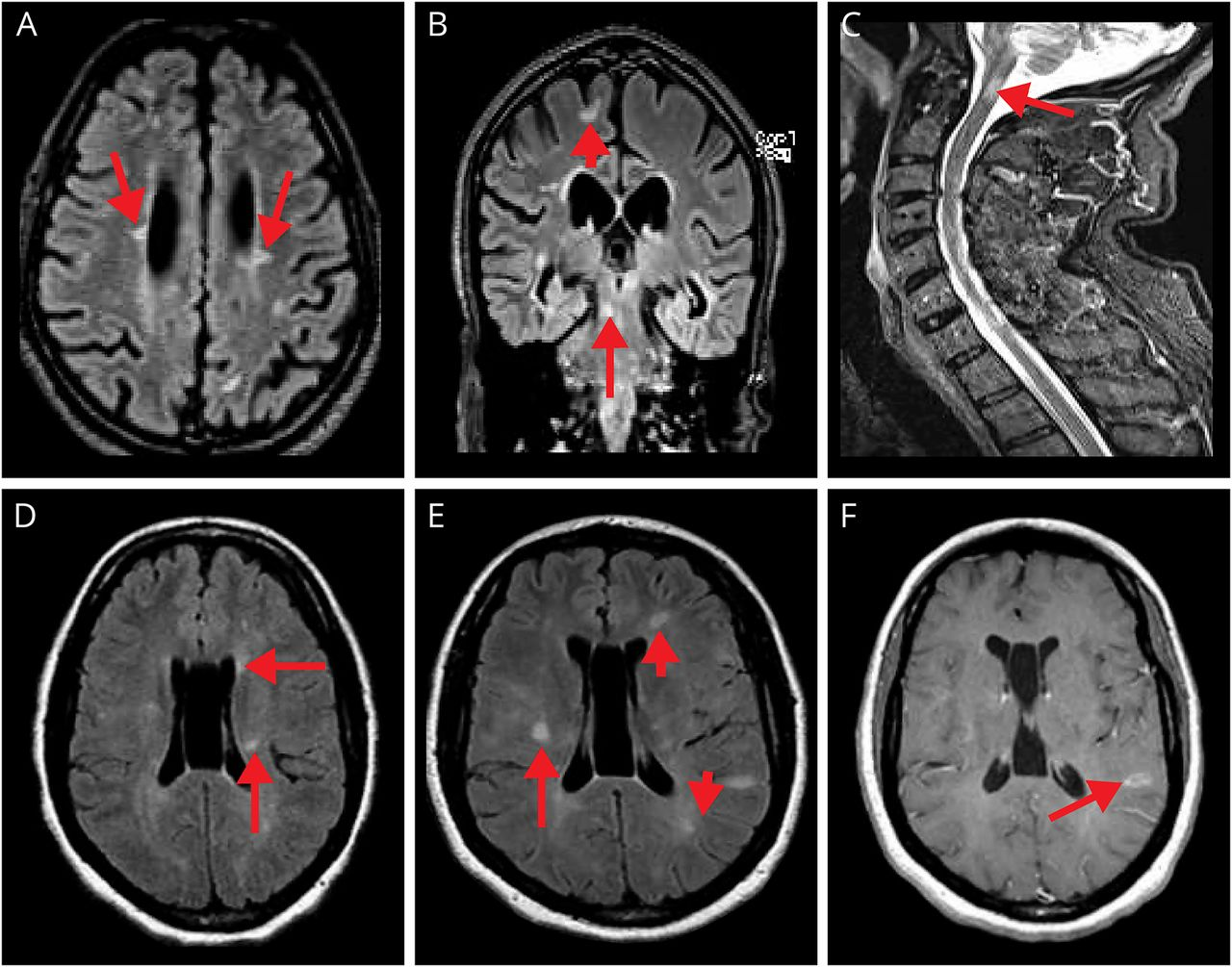 Multiple sclerosis and sarcoidosis | Neurology Clinical Practice